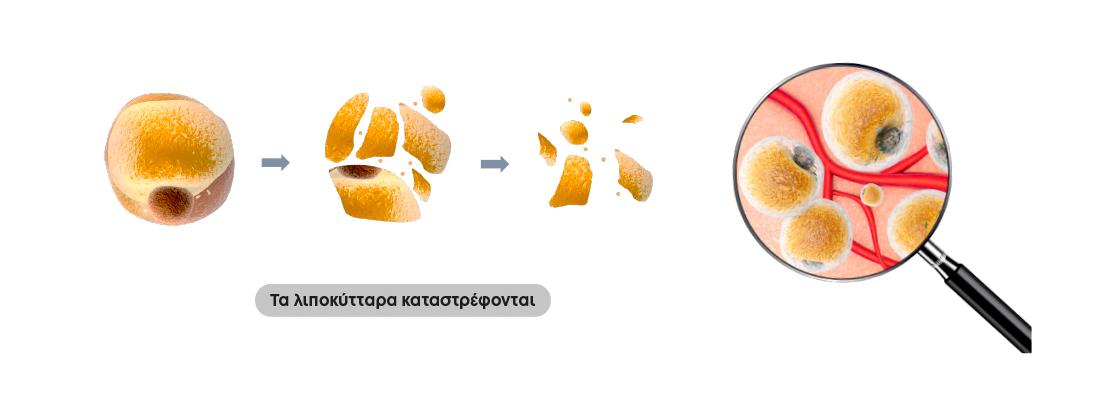 miha bodytec αγορα μηχανηματος λιποκυτταρα